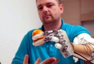 High Tech Handprothese bringt das Fühlen zurück